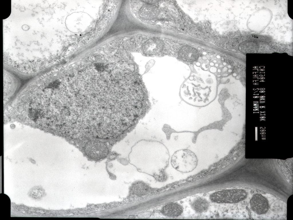 Inclusiones cilíndricas de potyvirus en floema