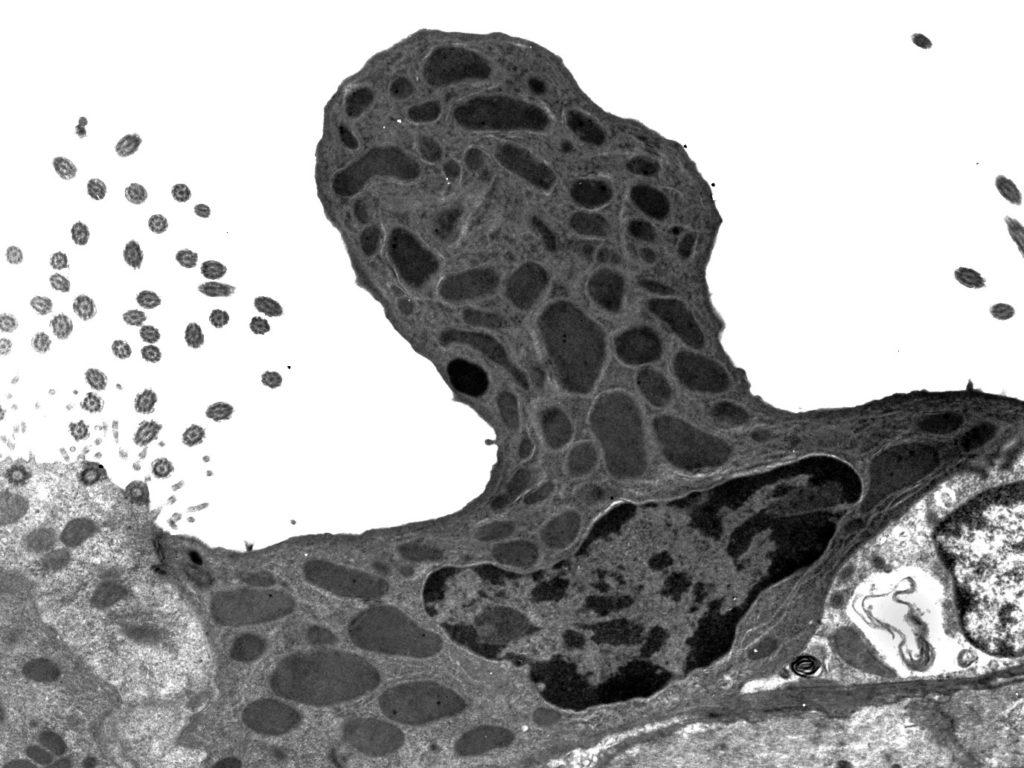 Pulmón de rsatón – célula de Clara en el epitelio pulmonar