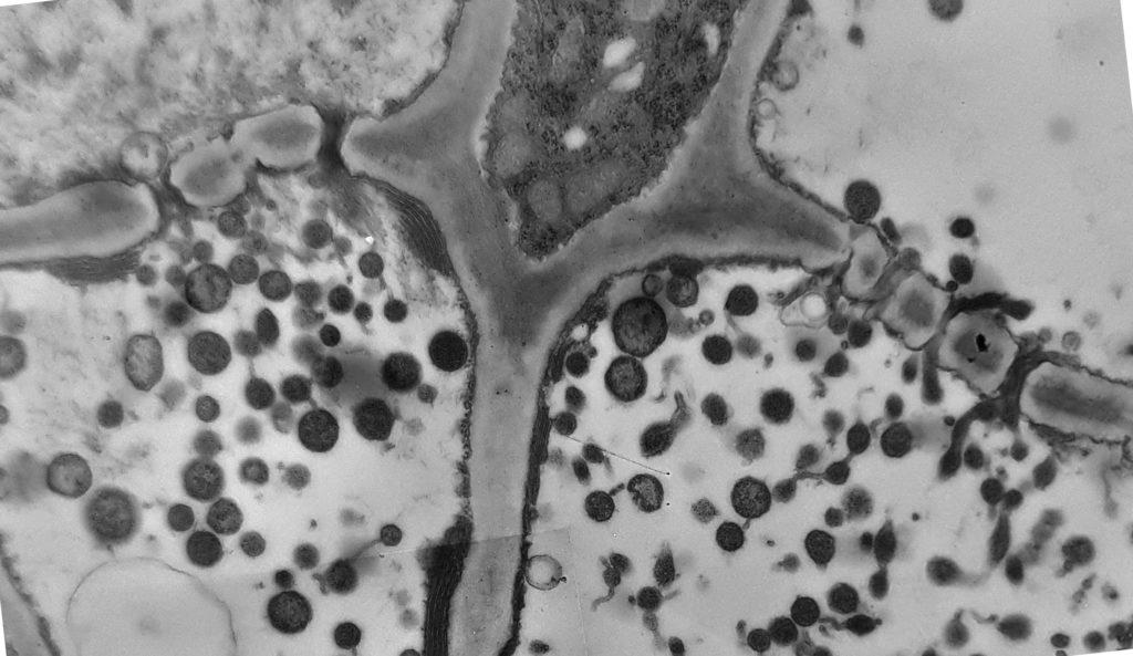 Pasage de fitoplasmas por plasmodesmos
