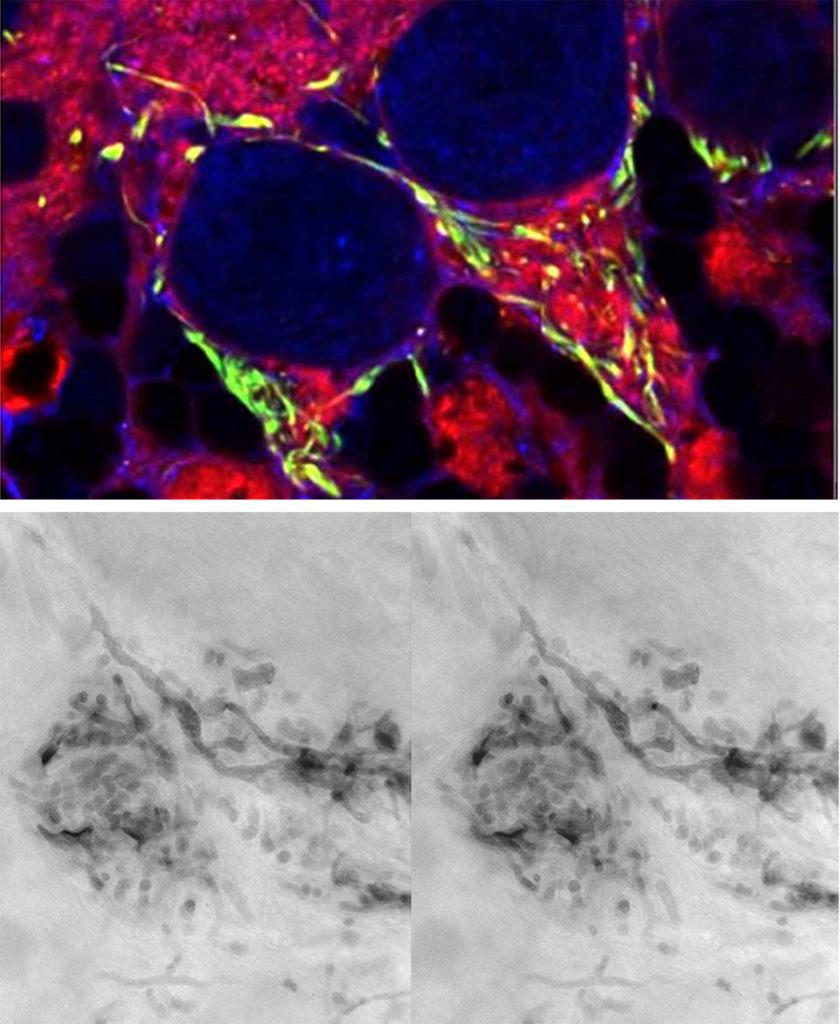 Microscopia correlativa (confocal/ tomografía electrónica) de una neurona del primer segmento axonal de una neurona de Purkinje